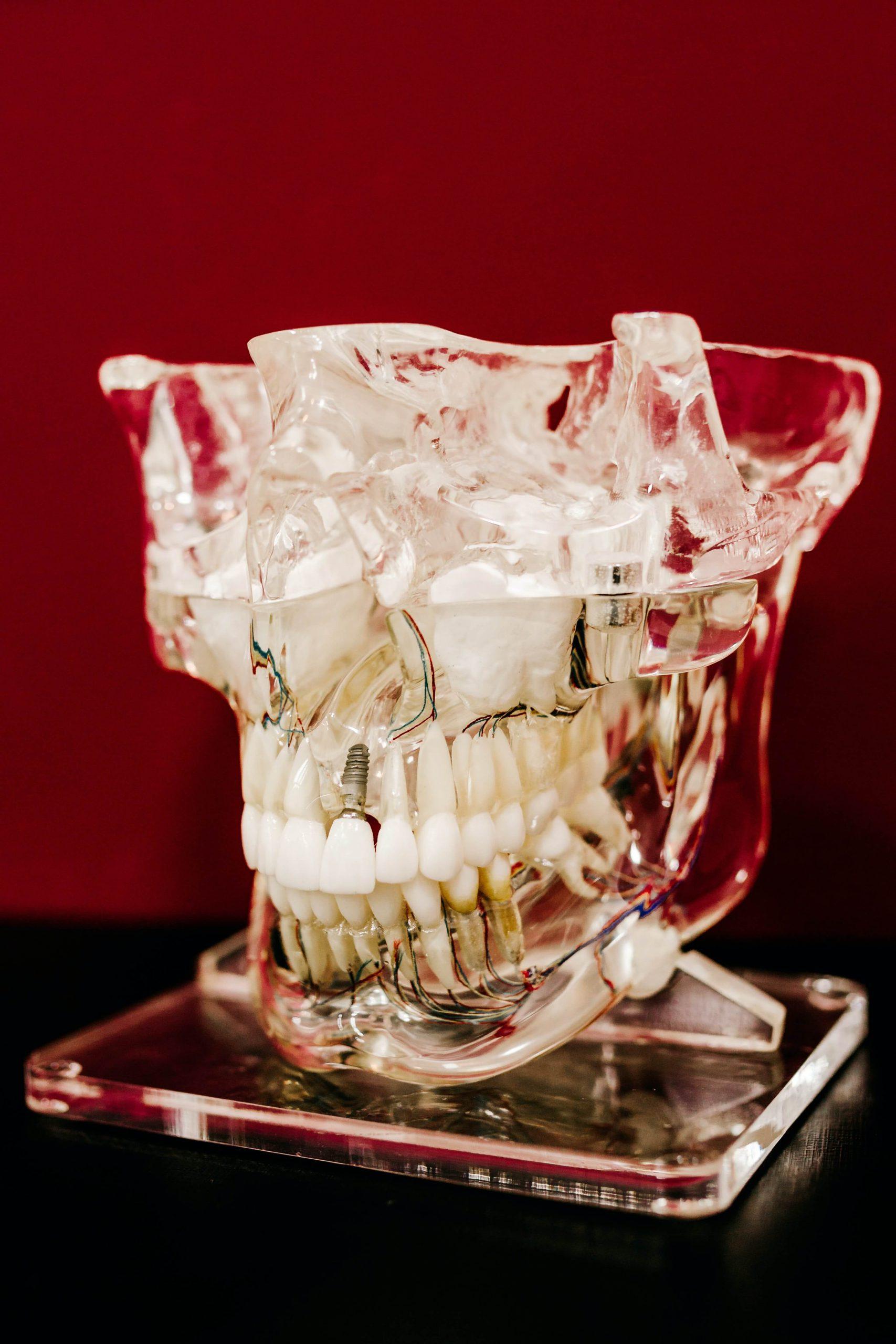 Ile kosztują implanty stomatologiczne - co warto wiedzieć?